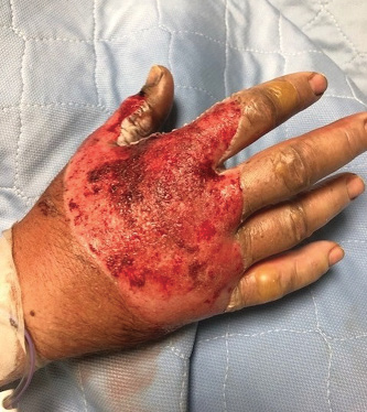 Full thickness third-degree burns to the right hand after debridement, day 2.